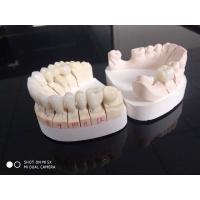 Buy cheap Anterior PFZ And Posterior Crowns Zirconia Accepting International Dental Clinic from wholesalers