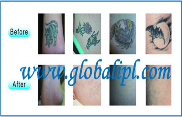 Tattoo Removal Q Switch Nd Yag Laser , Home Use Skin Rejuvenation Equipment