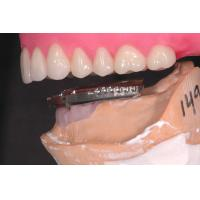 China Professional Dental Implant Attachments , Implant Overdenture Attachments wholesale