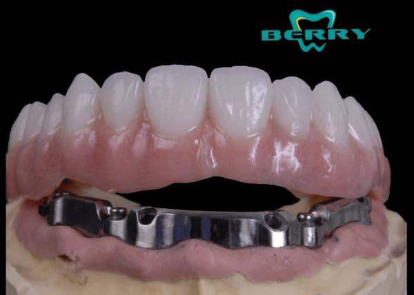 Quality High Retention Bar Attachment Metal Based Dentures For Comestic Defects Implants for sale