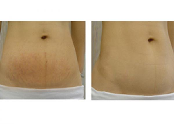 Quality Removal Stretch Mark / Wrinkle Laser Machine With Proffesional Fractional Laser for sale