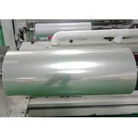China Hospital printing Screen Printing Film for Colour Doppler Ultrasound / CT results wholesale