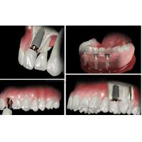 China Screw Retained Dental Implant Crown And Bridge For Dental Lab / Hospital Dental Clinic wholesale