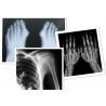 China Thermal Digital X Ray Film Fuji Medical For Radiography Examination wholesale
