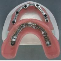 China Metal Based Implant Bar Attachment For Dentures , Locator Overdenture Attachments wholesale