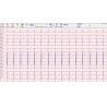 China Heart echo stress test 500Hz , stress ecg test PC and box connecte wholesale