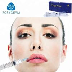 OEM Injectable for Lip Enhancement Hyaluronic Acid Dermal Filler 1ml Injection