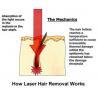 China Le principe de l'épilation de laser wholesale