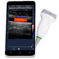 China Mobile Full Digital Portable Ultrasound Machine Wireless With 6 Inch LCD Touch Screen wholesale
