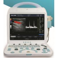 China DCU10PLUS portable color doppler ultrasound scanner wholesale