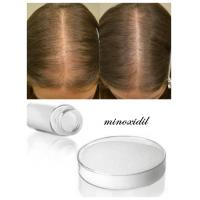 China Pharmaceutical Raw Materials Minoxidil 99% White Powder Miracle Cure for Alopecia wholesale