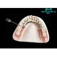 China Lock Dental Attachments Dentures Teeth With Strong Corrosion Resistance wholesale