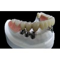 China Co-Cr Material Dental Precision Attachments Tooth Telescope Crowns Removable wholesale