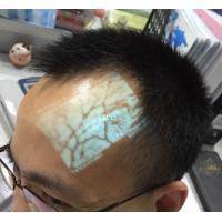 Medical Professional Vein Viewer Transilluminator Find Veins for Phlebotomy