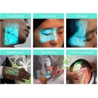 Injection Light Ems Health Analyzer Machine , Handheld Vein Locating Device