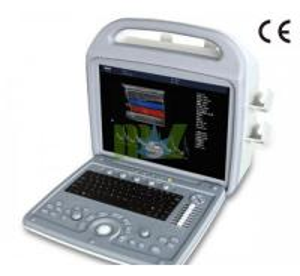 China Portable 3d ultrasound machine price - MSLCU06 wholesale