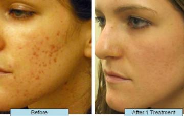 CO2 Laser Fractional Skin Resurfacing Treatment