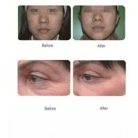 before & after oxy jet peel2.jpg
