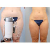 China Shaping Body Surgical Liposuction Machine Lipo Slim Machine For Chin / Outer Thighs wholesale