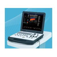 Laptop Portable Ultrasound Equipment , Ultrasound Imaging Machine With 3D Image