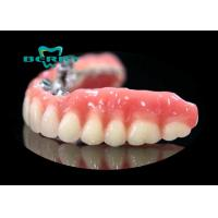 Buy cheap Precision Attachment Telescopic overdenture Palladium-Silver from wholesalers