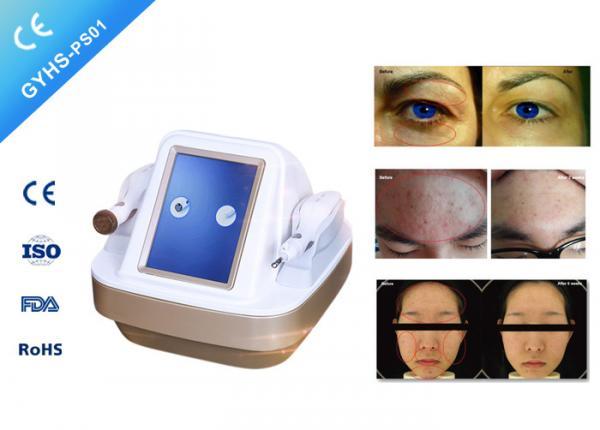 Quality 50 / 60HZ Multifunctional Beauty Machine Acne Scar Treatment No Consumption for sale