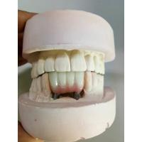 China Zirconia Dental Implant Crown , Tooth Implant Crown High Corrosion Resistant wholesale