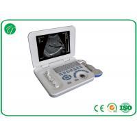 Full Digital Hospital Medical Equipment For B Mode Laptop Ultrasound Scanner CE