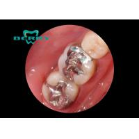 White Gold Alloy Dental Inlays Distinguished Biocompatible Tough