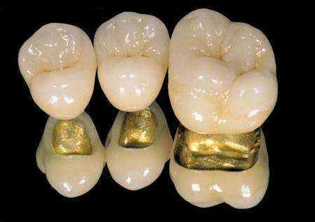 Quality Yellow Gold Dental Implant Crown PFM Porcelain Fused To Metal Crown For Dental Clinic for sale