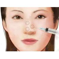 China Hyaluronic Acid Injection For nose surgery wholesale