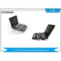 Buy cheap Laptop Ultrasound Doppler Vaginal Ultrasound Scanners Equipment With High Definition Images from wholesalers