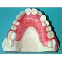 China Removable Prosthetic Valplast Denture wholesale