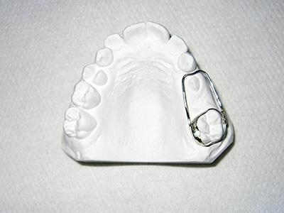 Quality Dental Retainer Space Retainers for sale