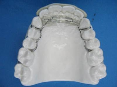 Quality Dental Retainer Spring Retainer for sale