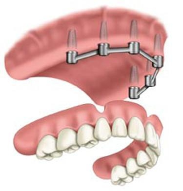 Quality Removable Prosthetic Implant Overdentures for sale
