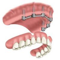 China Removable Prosthetic Implant Overdentures wholesale