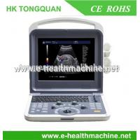China best full digital color doppler CANSONIC ultrasound scanner from professional on sale