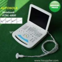 China Full-digital Cheap Notebook Color Doppler System Convex Linear MicroConvex Transvaginal Probe on sale
