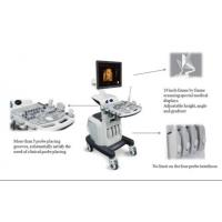 Buy cheap Color Doppler ultrasound series from wholesalers