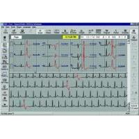 China Philips Holter Monitoring Software on sale